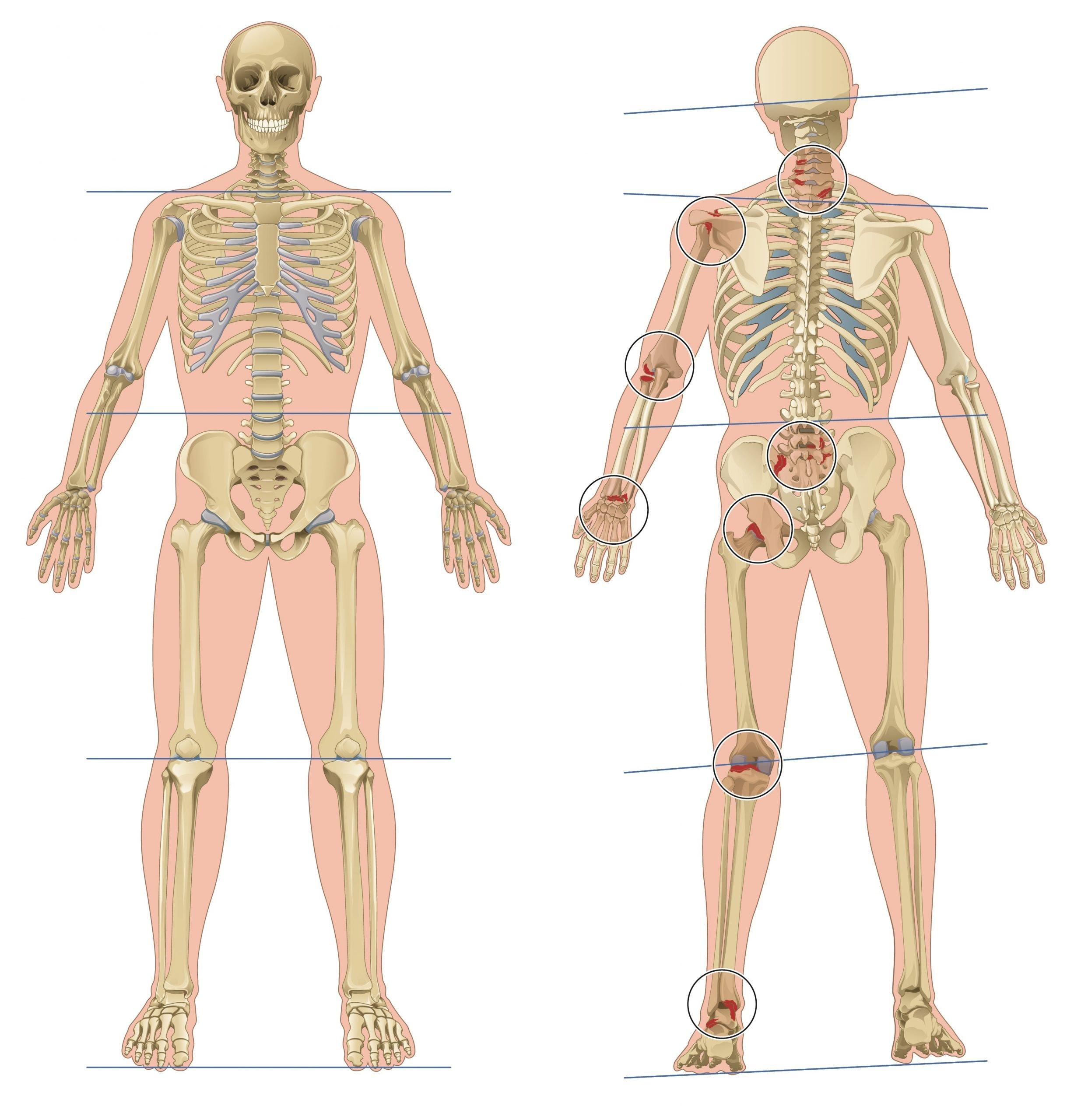Chiropractie Capelle