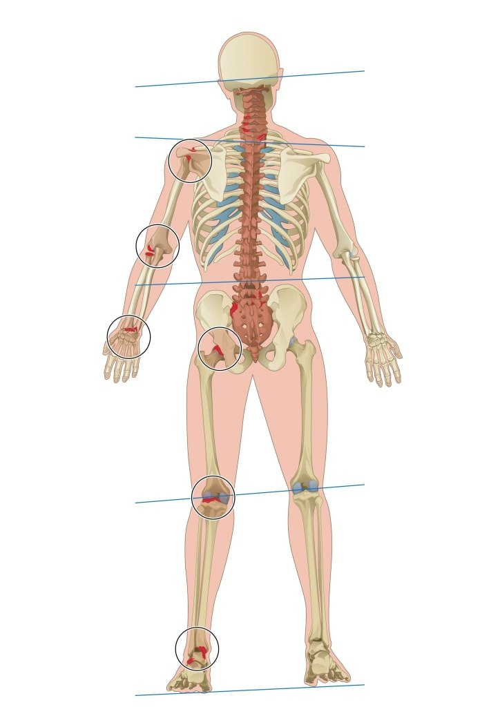 Chiropractie Behandelingen